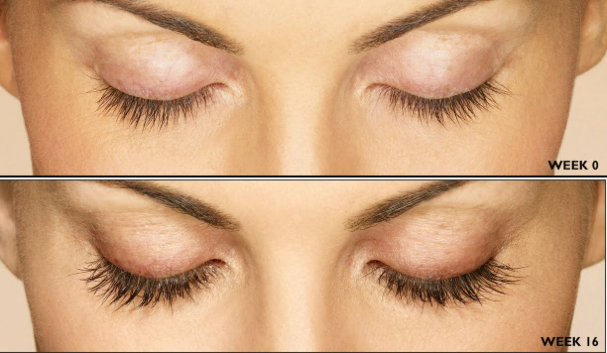Latisse Eyelash Enhancement Hess Medical Spa Fairfax Virginia