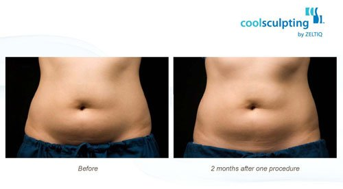 CoolSculpting Washington DC