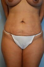 Liposuction Trunk