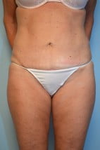 Liposuction with Mini Tummy Tuck