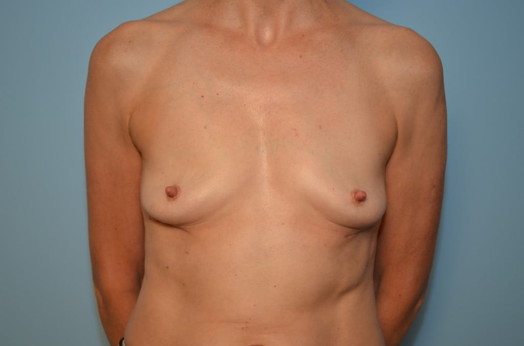 Can suggest removing replacing old breast implants you tell