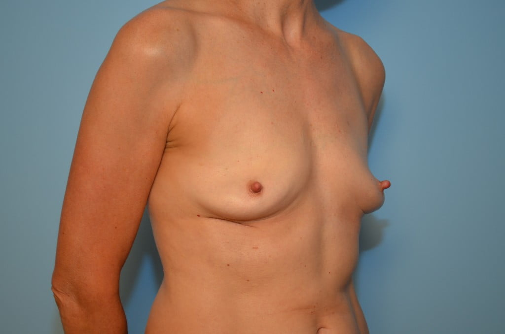 Removing replacing old breast implants apologise that