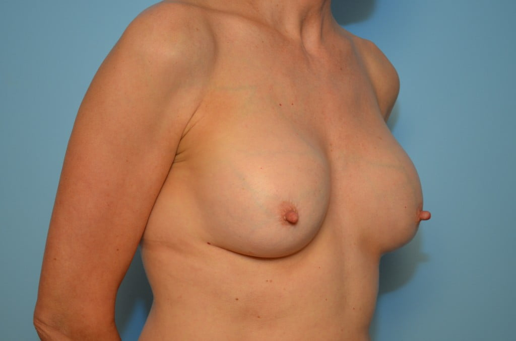 pay implant dow breast