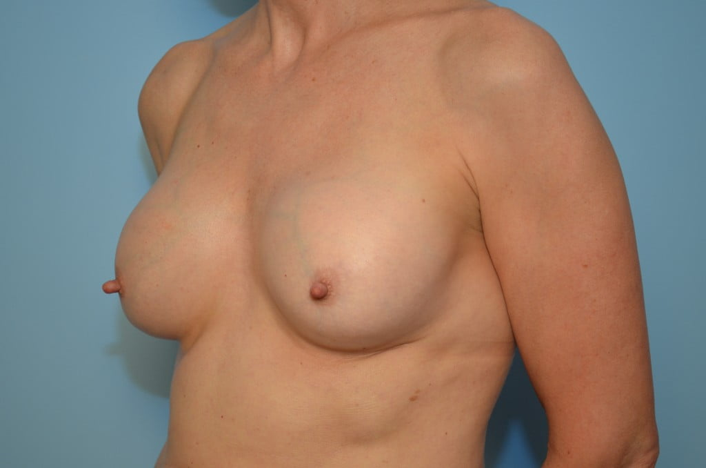 Have removing replacing old breast implants remarkable, the