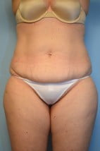TT + liposuction