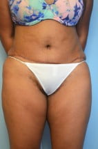 Lipoabdominoplasty
