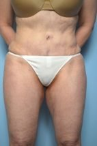 Standard Tummy Tuck with liposuction