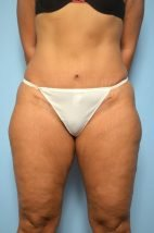 Umbilical Float Tummy Tuck with Liposuction