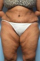 Abdominoplasty Liposuction