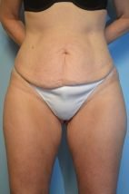 Umbilical Float Tummy Tuck,  Liposuction