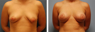bilateral breast augmentation with left breast mastopexy