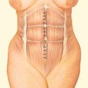 Abdominal Muscle Repair