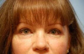 Facial Surgery