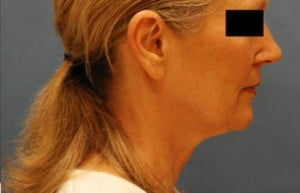 neck lift before image