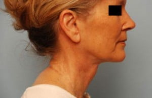 neck lift after image