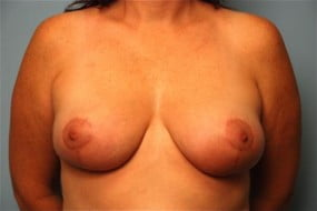 Breast Surgery Breast Reduction