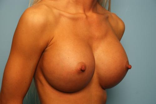 Dd boob weight-3495