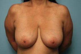 Breast Surgery Breast Lift