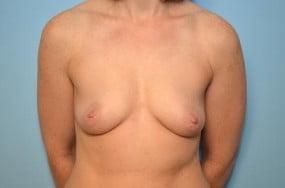 Breast Surgery Breast Augmentation