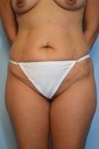Liposuction Trunk