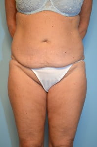 Liposuction with Mini Tummy Tuck