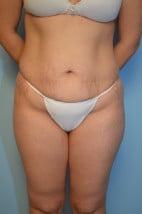 Abdominoplasty + lipo