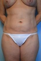 Liposuction Abdomen and Flanks