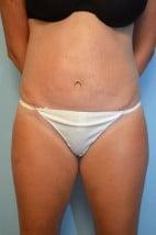 Umbilical Float Tummy Tuck