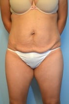 Tummy Tuck, Liposuction Abdomen and Flanks