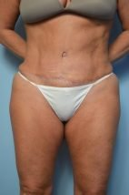 Abdominoplasty and liposuction