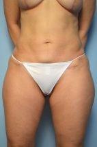 Mini Tummy Tuck + Abdominal Liposuction