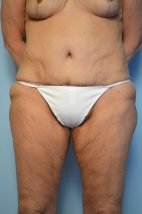 Standard Tummy Tuck and liposuction