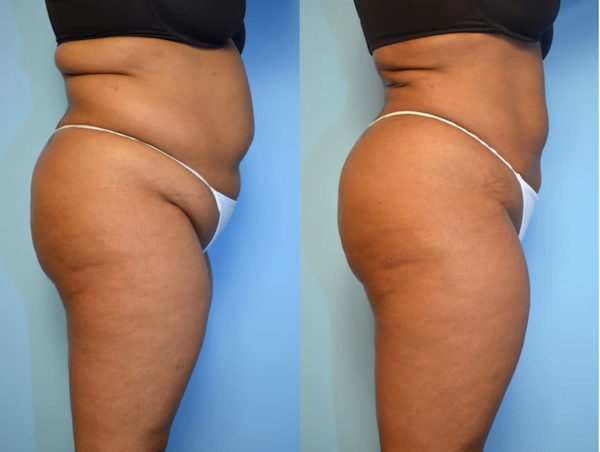 before and after liposuction to hips, lower back, abdomen. Removing fat enhanced the patient's buttock shape.