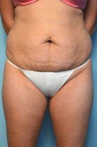 Abdominoplasty/Liposuction