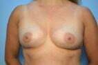 Breast Aumentation