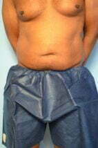 Liposuction, Mini TT