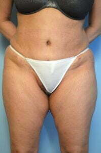 Abdominoplasty, Liposuction