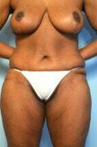 Abdominoplasty Breast Lift